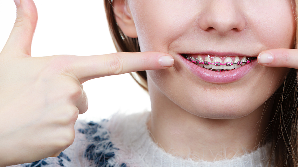 Find a Certified HSO Orthodontist Near You